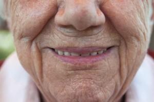 sorriso denti fissi